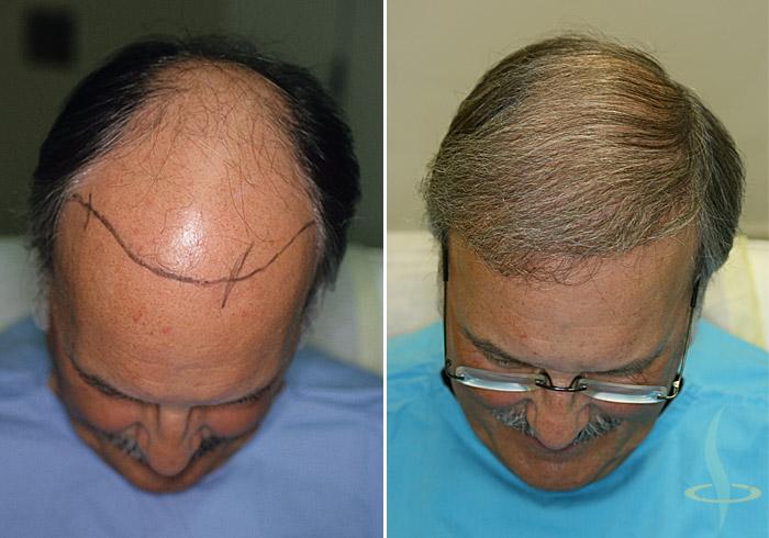 Слева: до 1 операция / справа: до 3-й операция