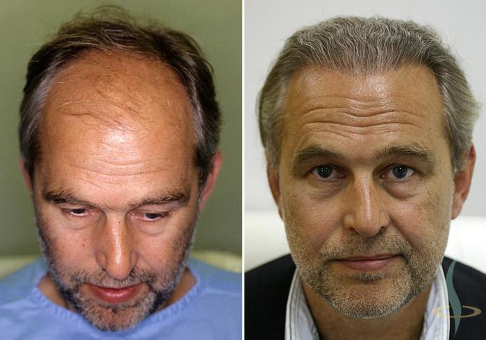 Слева: перед / справа: 8 месяцев после 3-ой операции (в общей сложности 2800 участков для пересадки ткани)
