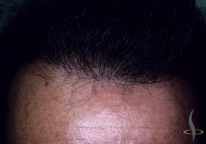 начало образования волосяного покрова