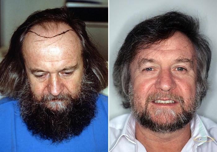 Слева: перед / справа: 1,5 года спустя после 2-ой операции