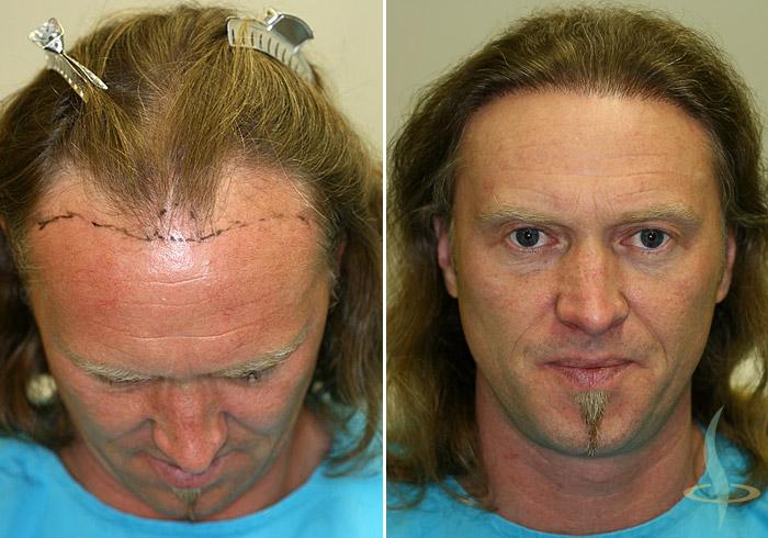 Слева: до 1-ой операция / справа: после 2-ой операции