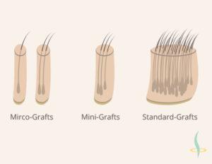 Рисунок 2: Классификация трансплантатов в зависимости от их размера. Собственный рисунок