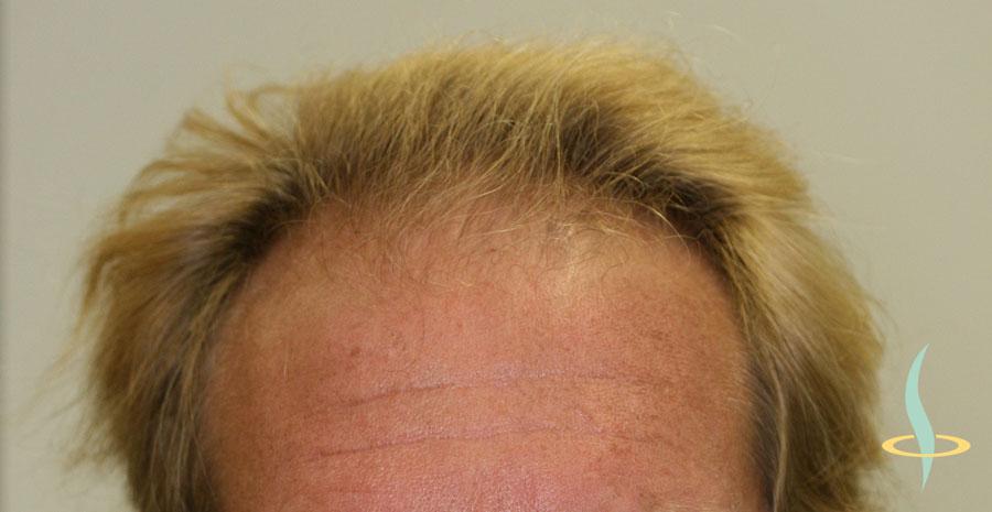 Рисунок 5: Пациент перед операцией с лысой поверхностью головы от линии роста волос на лбу до теменной части головы.