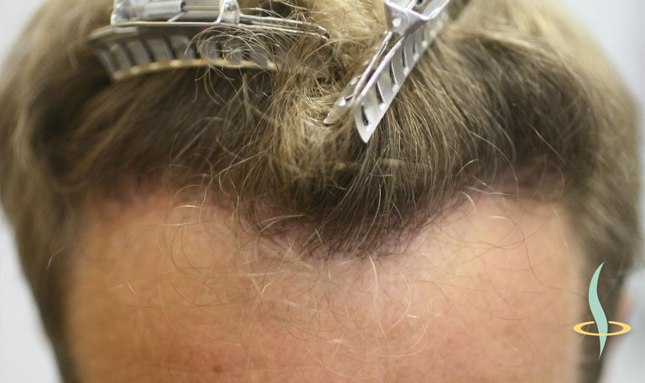 Рисунок 11: Линия роста волос после трансплантации собственных волос.