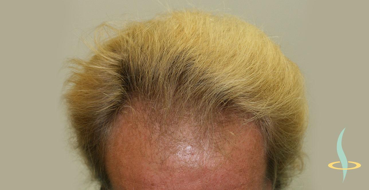 Рисунок 9: Перед трансплантацией собственных волос.