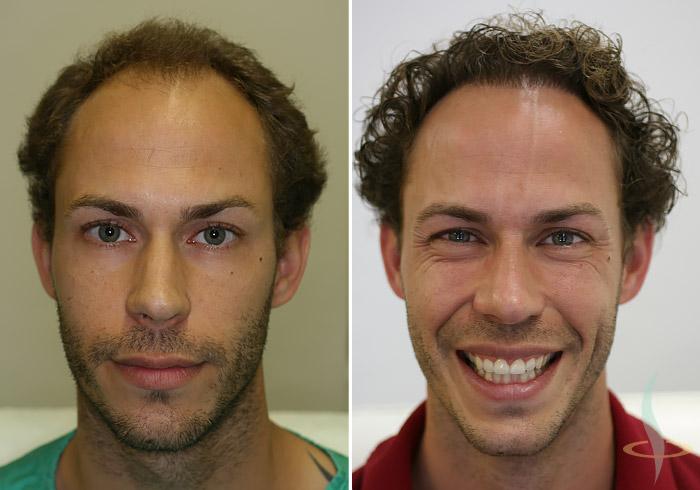 Слева: перед / справа: после 2-ой операции