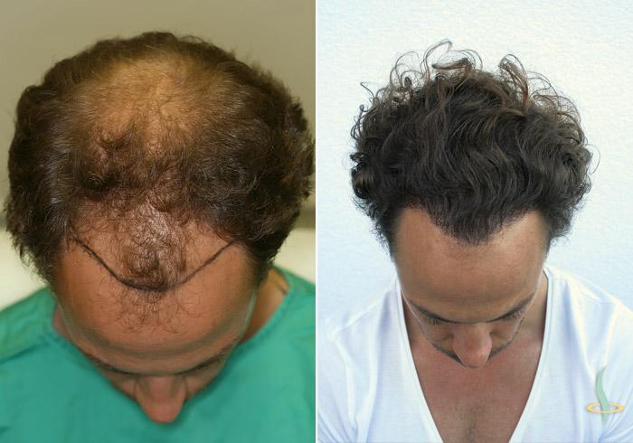 Слева: перед / справа: после 3-ой операции